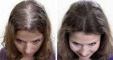 Bayanlarda Saç Ekiminin Riskleri Nelerdir?