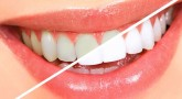 Diş Beyazlatma Kalemi Nedir, İşe Yarıyor Mu?