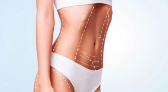 Liposuction ile Vücudunuzdaki Fazla Yağlardan Kurtulun